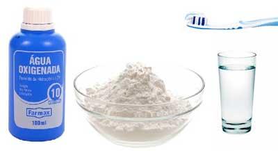 blanqueamiento dental con agua oxigenada y bicarbonato sodico