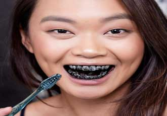 carbon activado para blanquear dientes