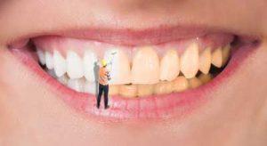 que es un blanqueamiento dental